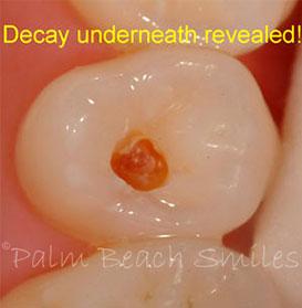 cavitie-2