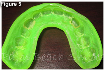 fig5-mouthguard
