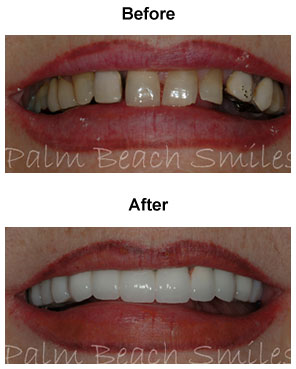 smile-6b