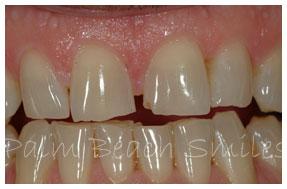 teeth-grinding-1