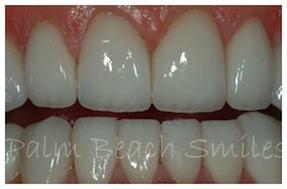 teeth-grinding-2