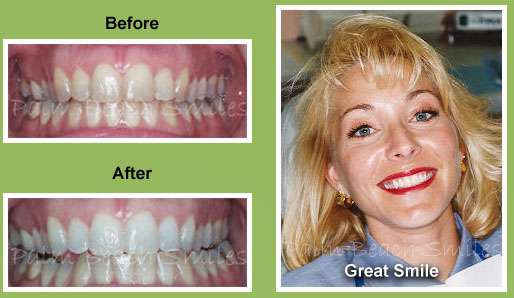 teeth-whitening-photos