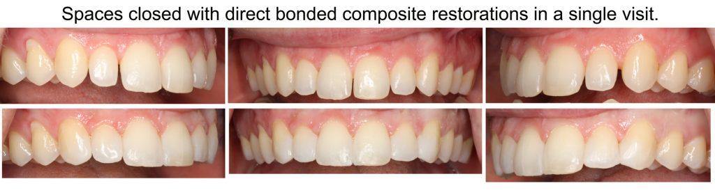 Dental Bonding Gallery